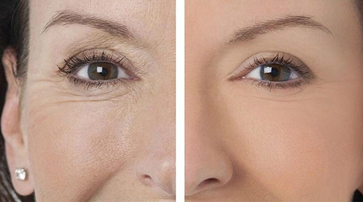 no wrinkles