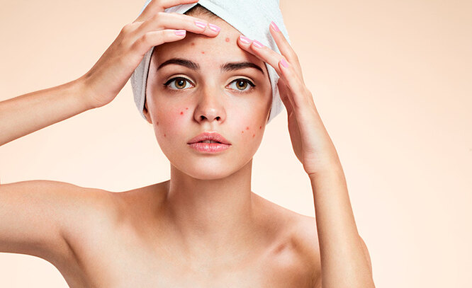 problem skin with breakouts