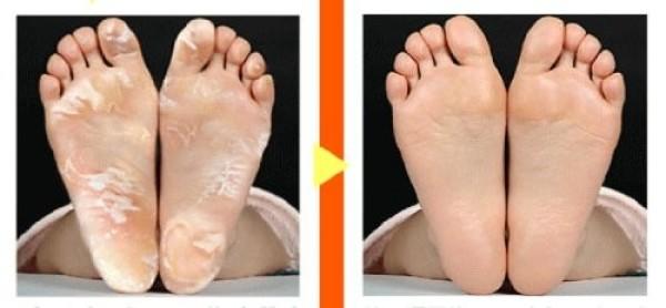 ASHIURA RAN RUN MYM Peel Socks